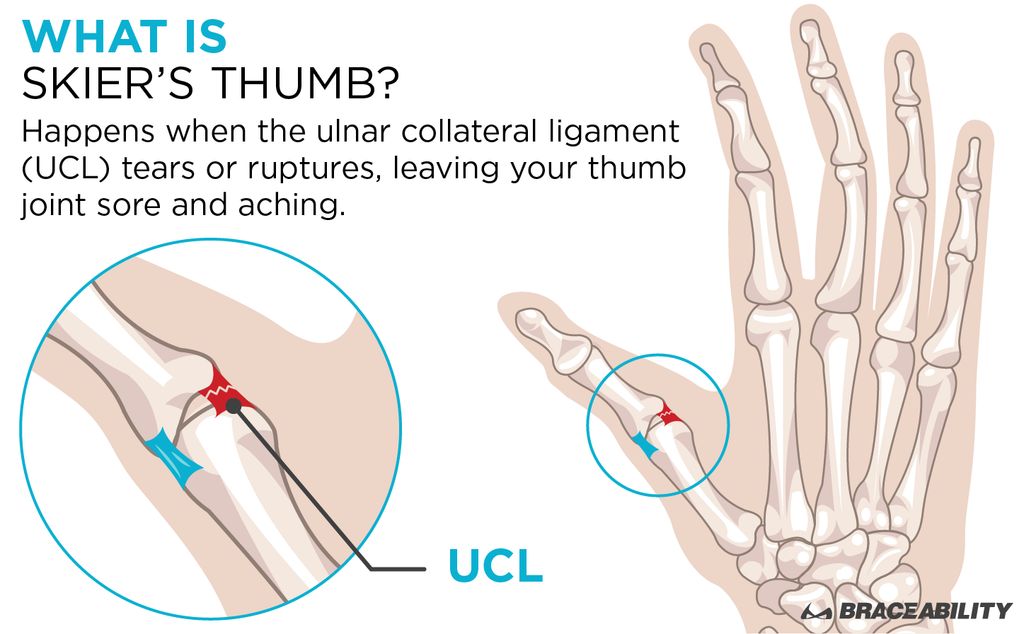 what is skier's thumb graphic explaining a torn ucl ligament that is the same as gamekeepers thumb