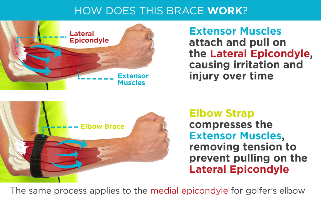 How does an epicondylitis brace work to treat medial and lateral epicondylitis