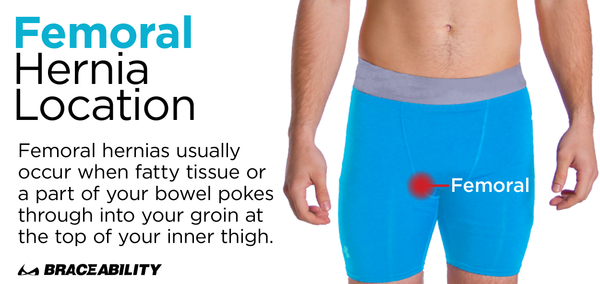 a femoral hernia happens on the inner part of a males thigh near the groin