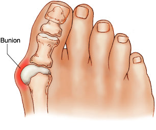 Anatomy of your toe joint where bunion pain happens