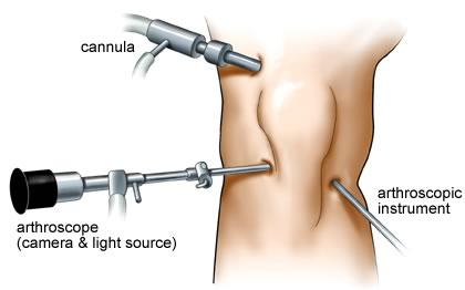 graphic showing what arthroscopic surgery for pcl tears looks like