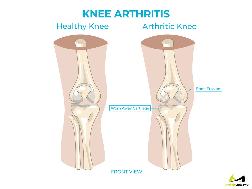 anatomy of knee arthritis causing back of knee pain