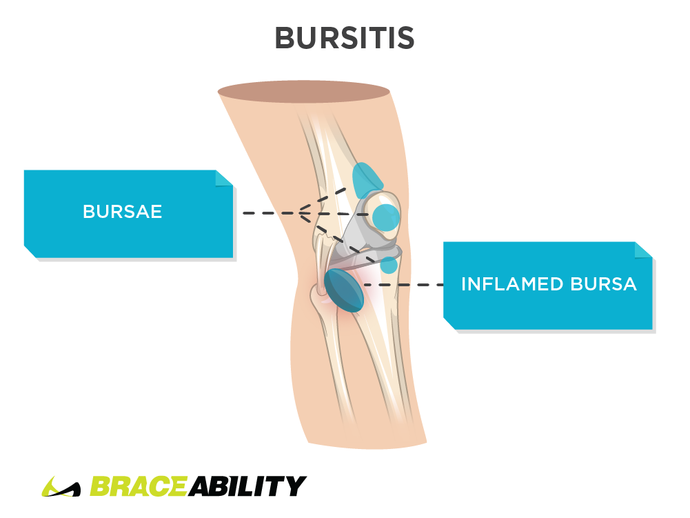 Pain inside the knee from bursitis