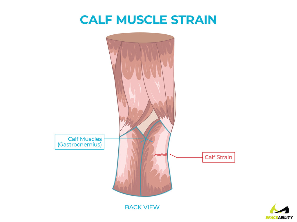 anatomy of a calf muscle strain or gastrocnemius tendonitis