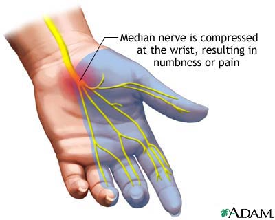 anatomy of the hand and pressure on the median nerve causes carpal tunnel