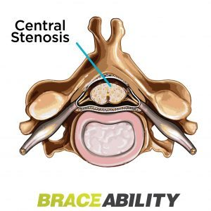 a pinched nerve in the main spinal canal is called central stenosis