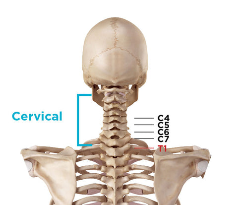 common location of cervical spinal stenosis in neck