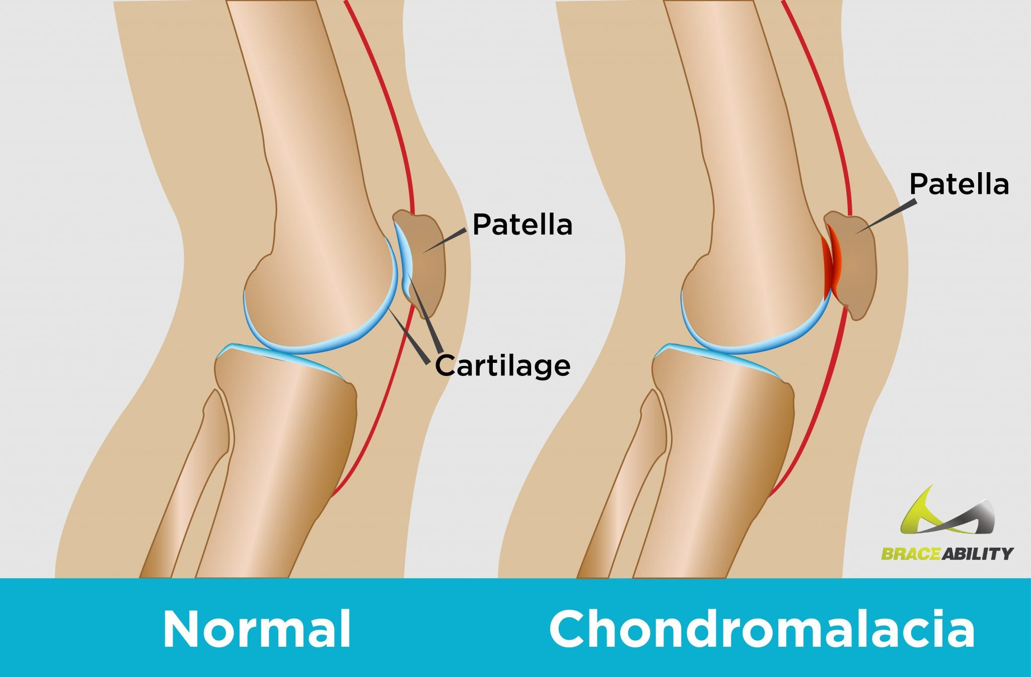 Cartilage in the knee deteriorates over time causing chondromalacia behind the kneecap