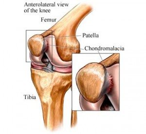 chondromalacia in the knee cap and patellofemoral from kneecap pain