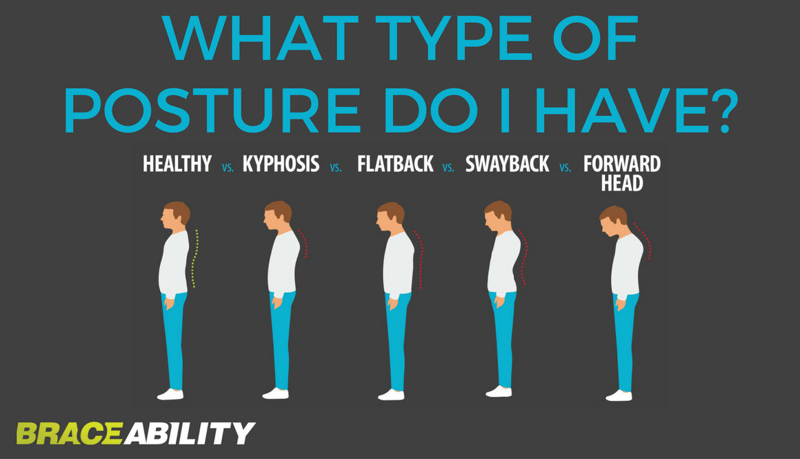 the differences between kyphosis, flatback, swayback and forward head in a comparison graphic