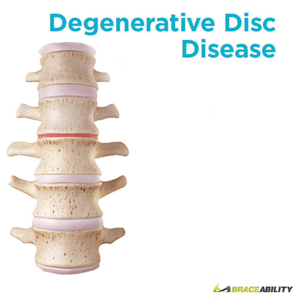 Degenerative disc disease usually happens in the lower neck and is caused by a weakening in the discs between vertebrae