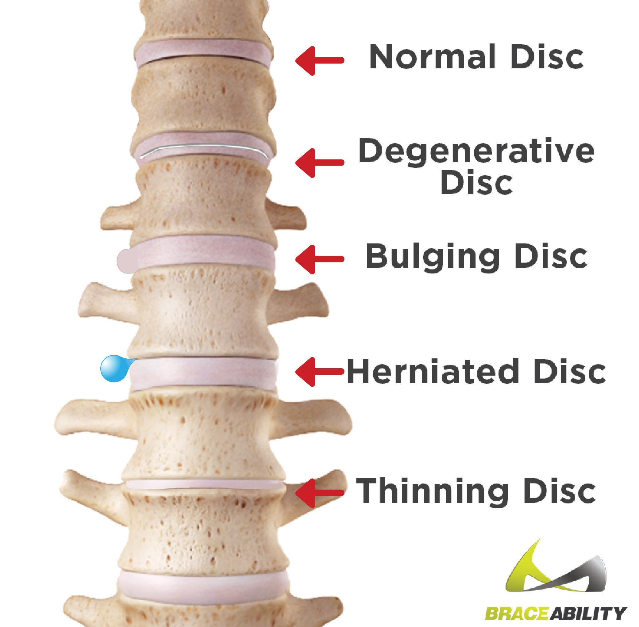 Use this graphic to see the difference between bulging disc and a herniated disc
