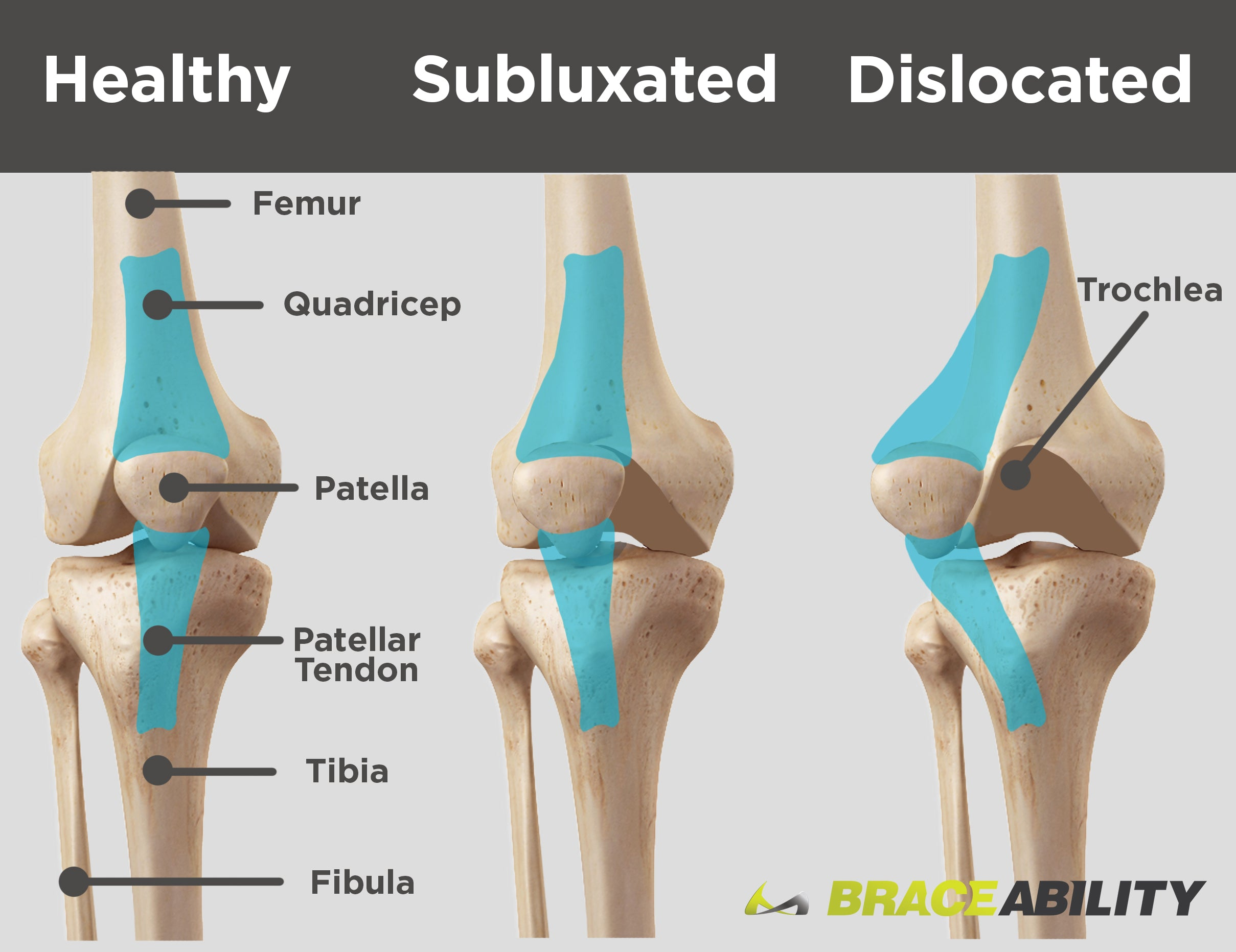 84383be91f Use this diagram to see the difference between a subluxated kneecap and one  that is fully. Patellar ...
