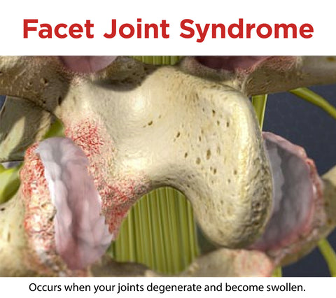 facet joint syndrome happens when joints deteriorate and grind in your back