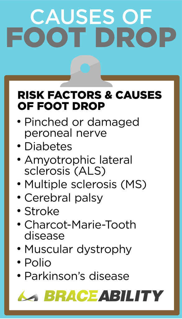 The Ultimate Guide to Foot Drop: Causes, Symptoms, Treatment