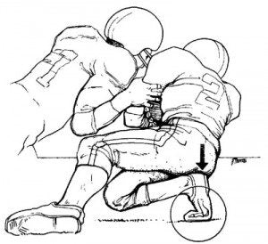 Graphic showing how athletes like football players get lisfranc injuries from over bending their foot