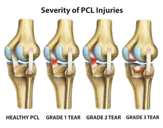 the different grades of pcl injuries in your knee and how the differ