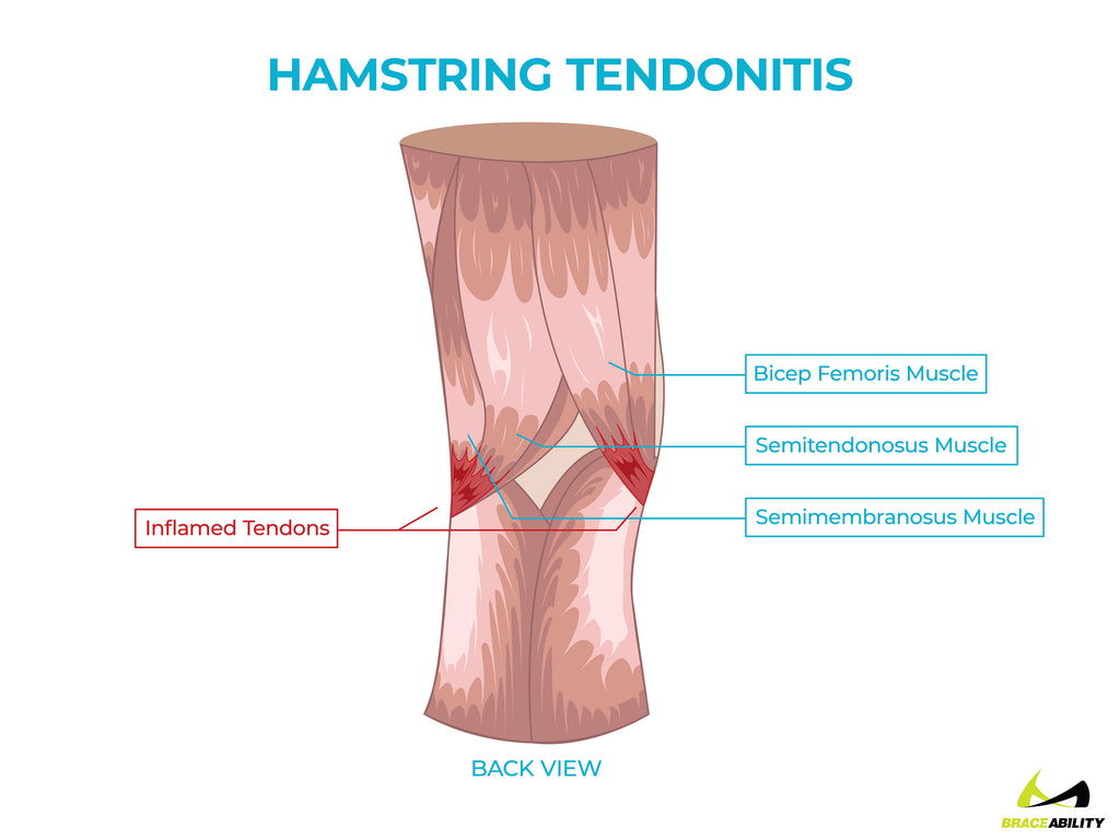 anatomy of hamstring tendonitis pain behind the knee