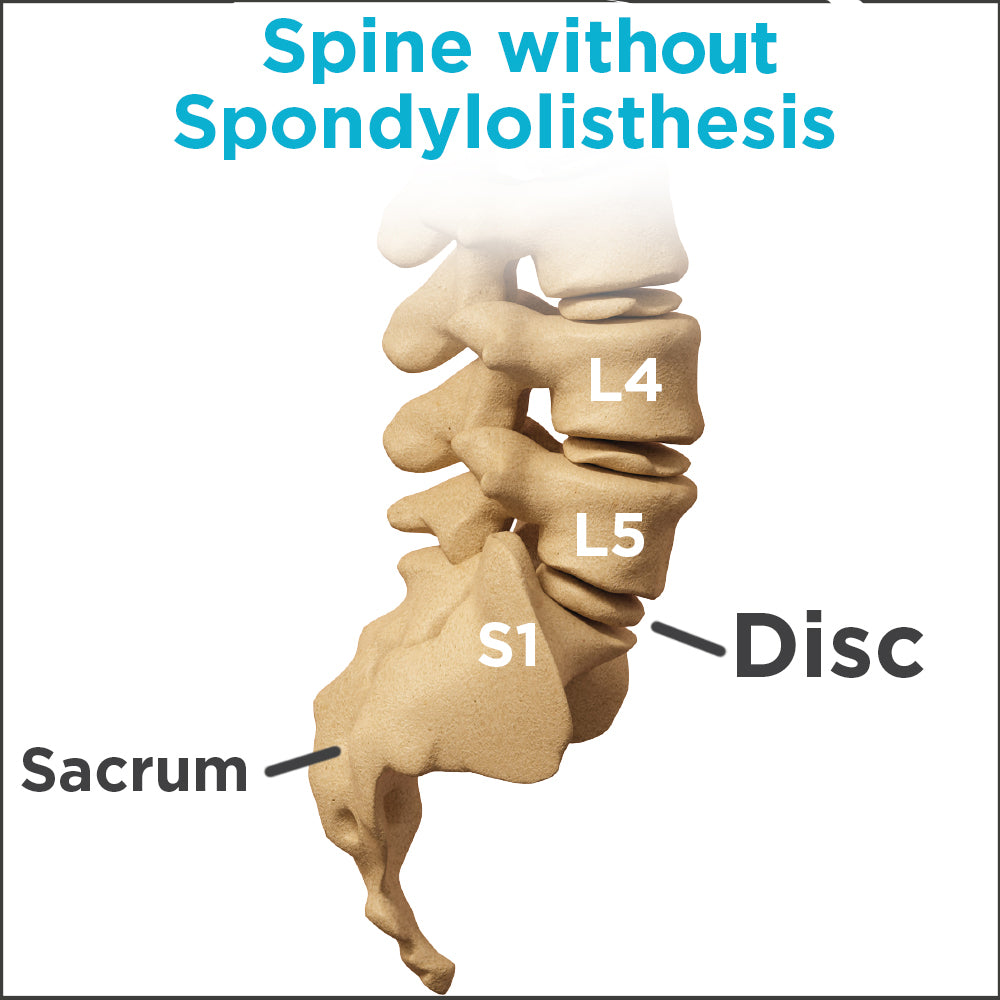 anatomy of a healthy spine without spondylolisthesis