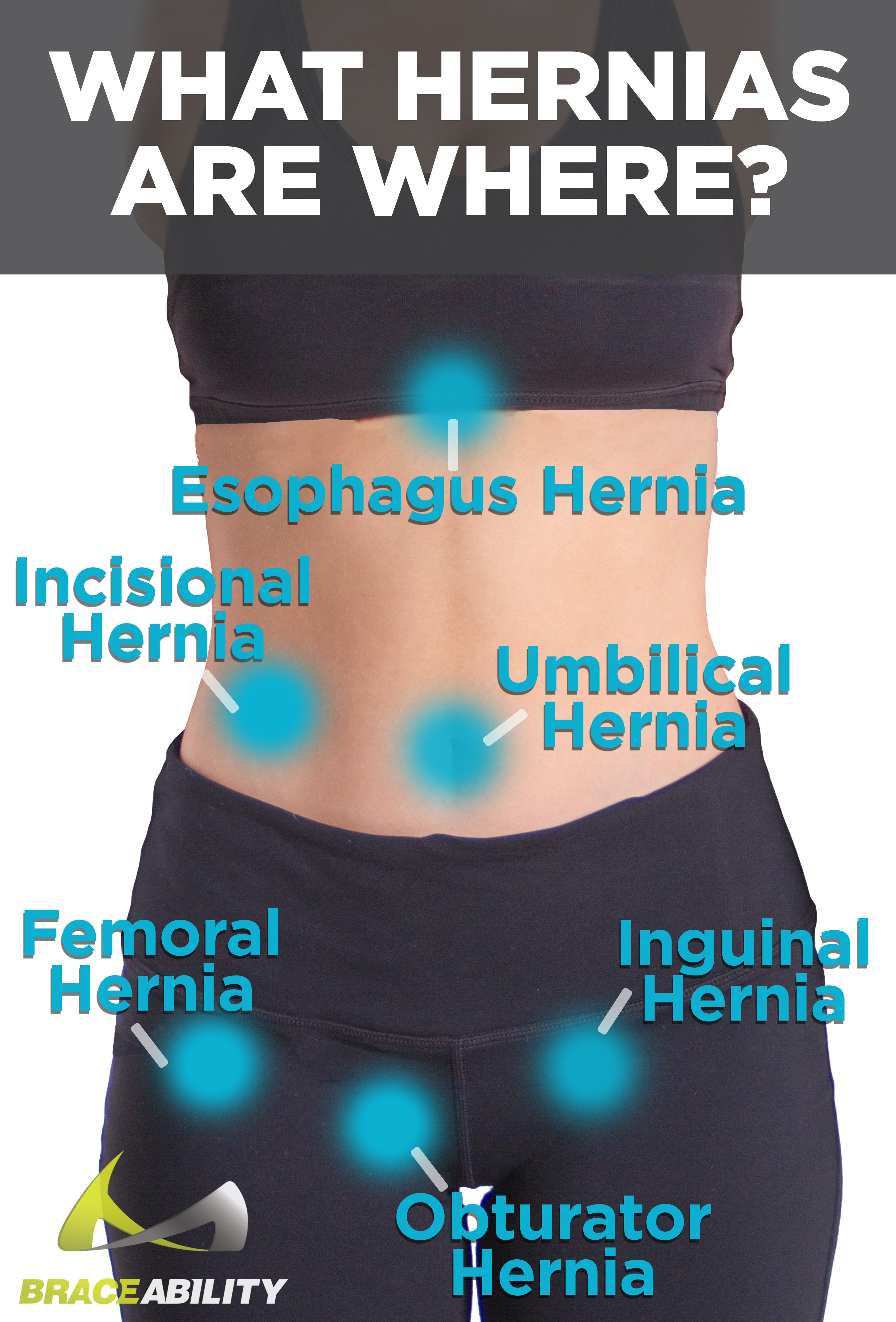 the common locations that women can get abdominal hernias