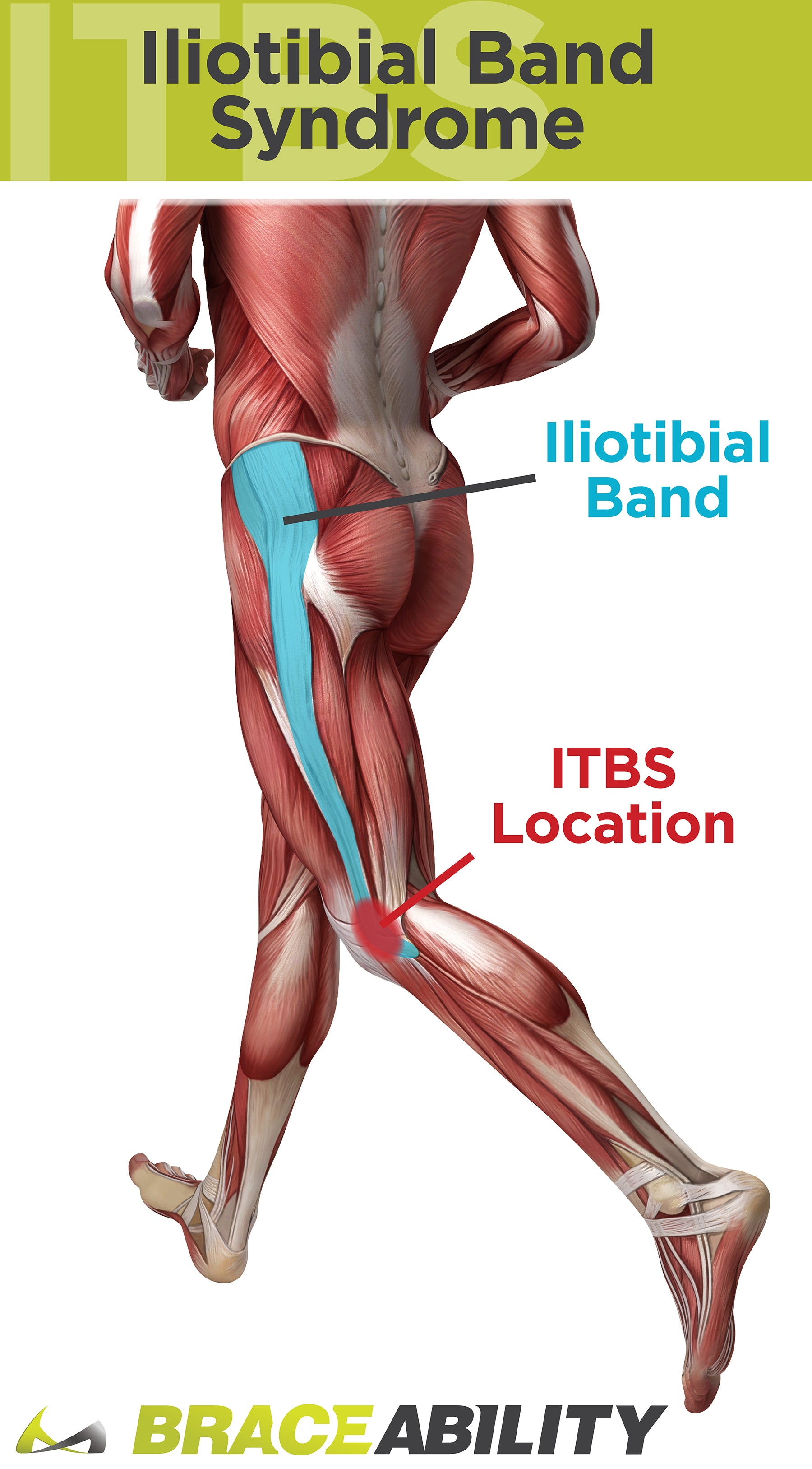 IT band syndrome is a leading cause of knee pain through the iliotibial band syndrome