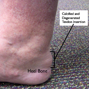 insertional achilles tendonitis affects the lower tendon attached to the heel