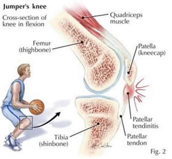 anatomy of jumper's knee, symptoms, possible causes, treatments, and prevention