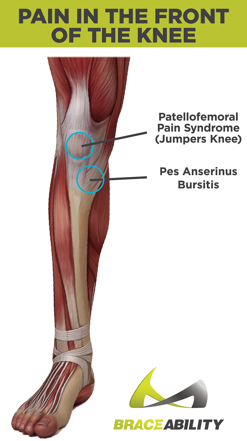types of pain you feel in the front of your knee - patellofemoral pain syndrome, jumpers knee and pes anserinus bursitis