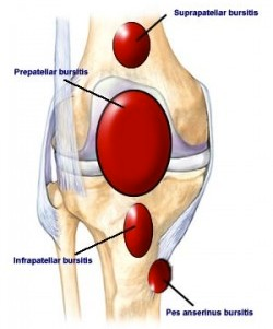 learn about knee bursitis anatomy, symptoms, and treatments