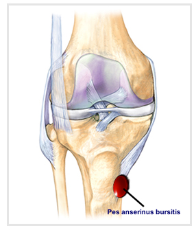Bursitis knee knee bursitis symptoms treatment anatomy of the pes anserinus bursa possible causes of injury and treatment ccuart Image collections