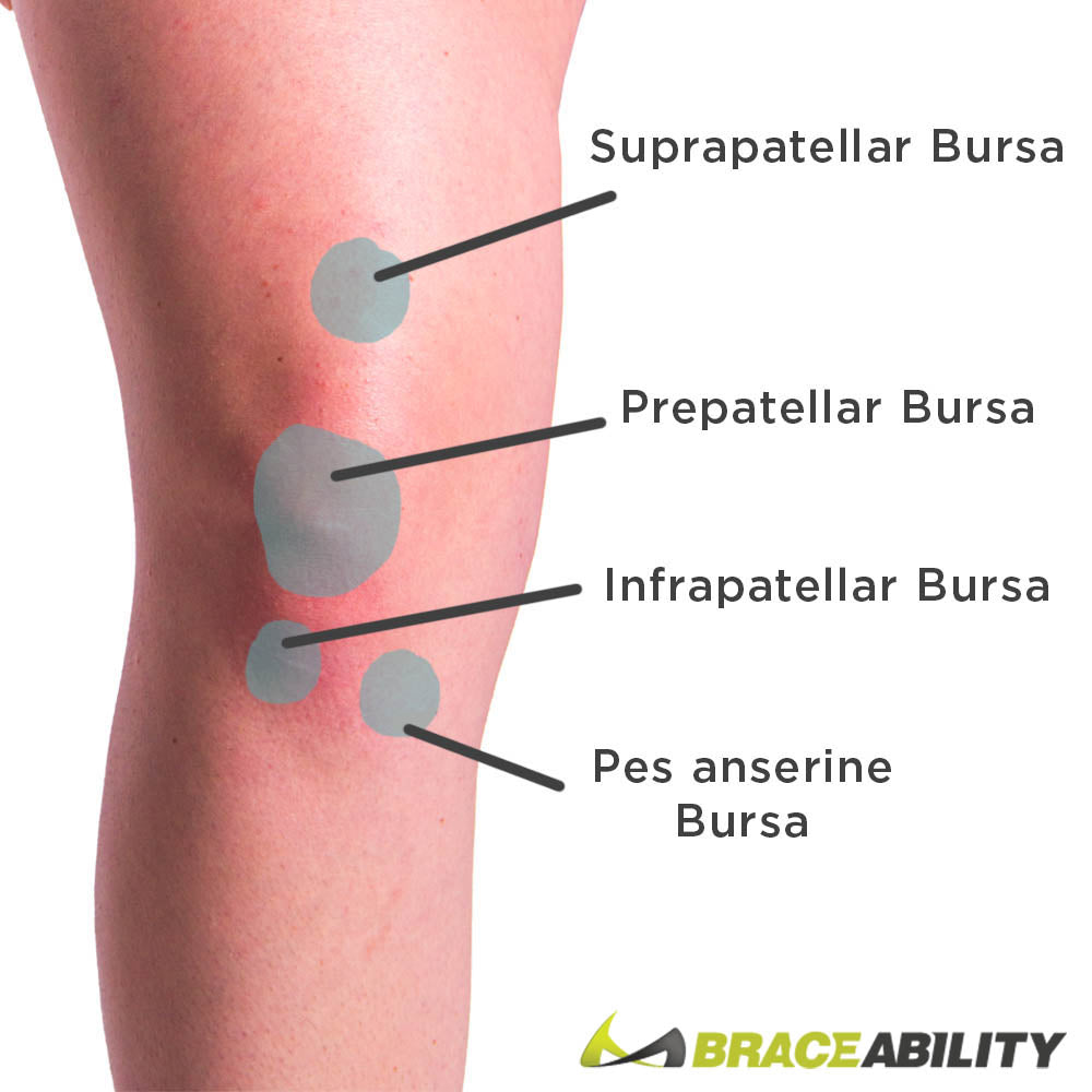 knee bursa diagram showing the different spots you can get knee bursitis at