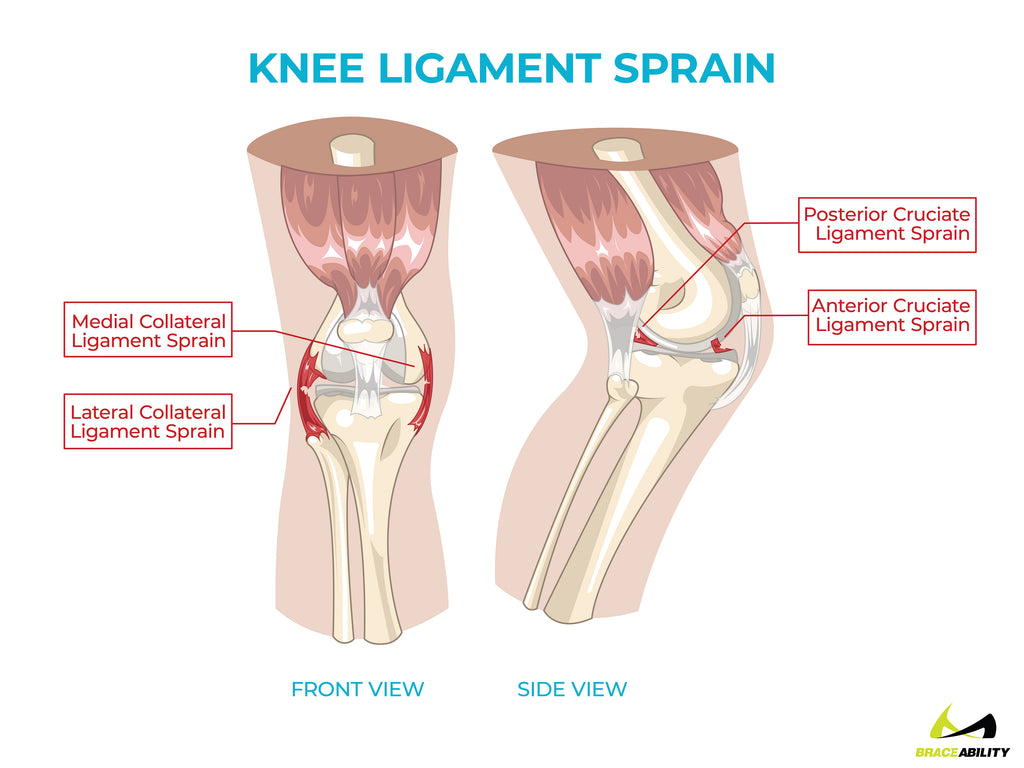 anatomy of knee ligament sprains causing back of knee pain