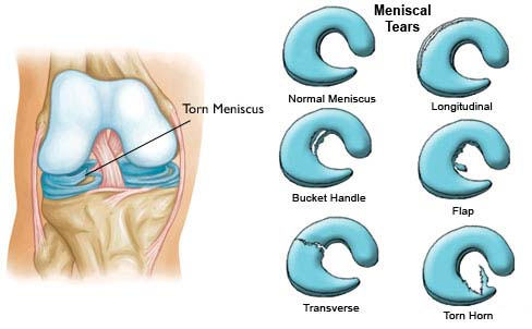 knee cartilage anatomy and possible meniscus injuries during contact sports