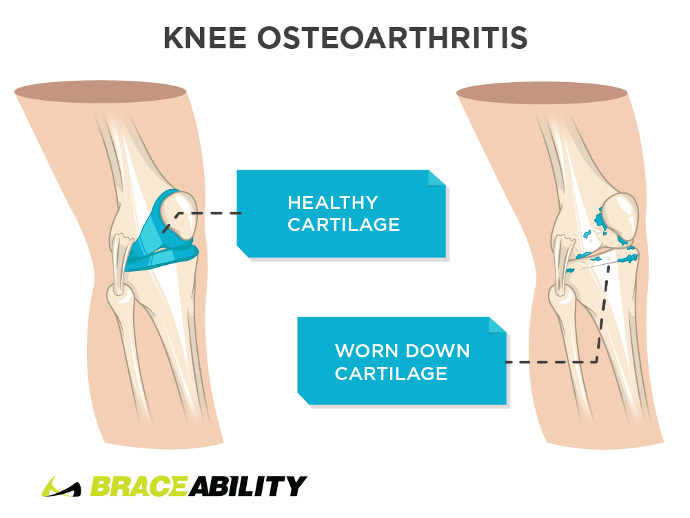Pain inside the knee from knee osteoarthritis
