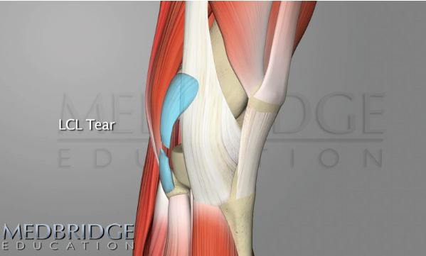 learn about lateral collateral ligament anatomy and tears