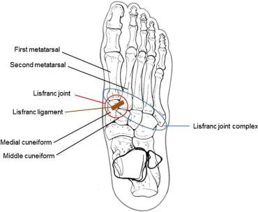 lisfranc foot injury location with anatomy labeled