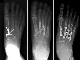 severe lisfranc injuries can require surgery to realign the joint