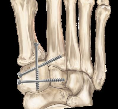 Lisfranc surgical treatment usually involves the insertion of screws into the foot and toe bones