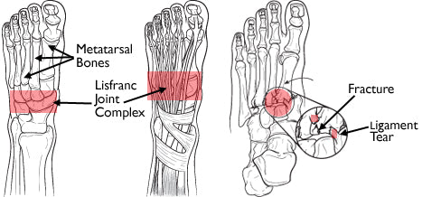 more severe lisfranc foot injuries include fractures, ligament tears, and dislocated bones