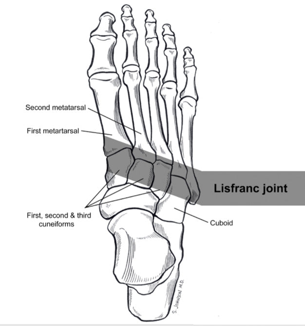 Lisfranc foot injury diagram location near heal