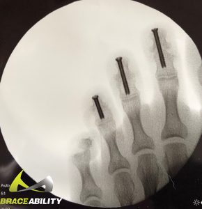 screws in toes to help heal toes after mallet toe surgery