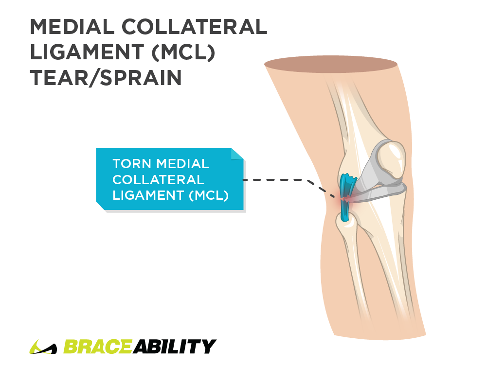 pain inside of the knee from medial collateral ligament tear or sprain