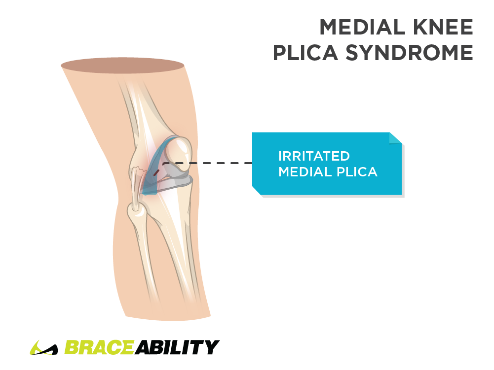Pain inside the knee caused by medial knee plica syndrome