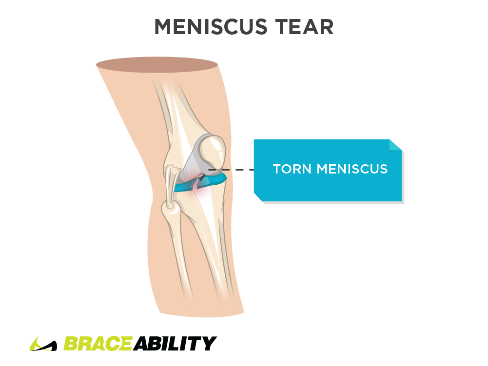 Pain inside the knee from meniscus tear