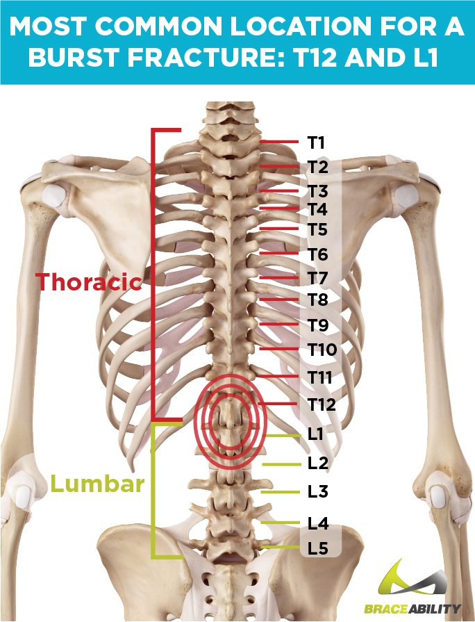location on an anatomy chart of where t12 and l1 burst fractures happen at