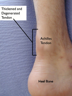 noninsertional achilles tendonitis affects the middle portion of the achilles tendon