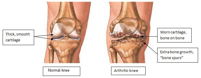 Chart comparing arthritis of the knee with degenerated joints vs. a healthy kneecap