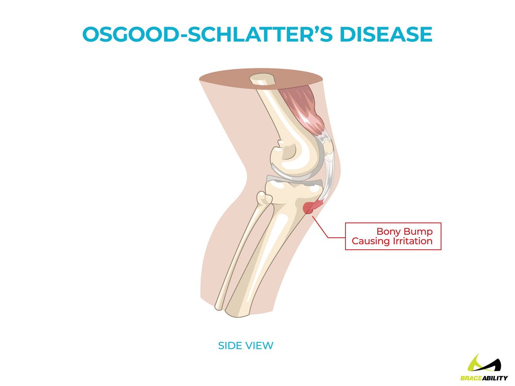anatomy of osgood schlatter's disease causing back of knee pain