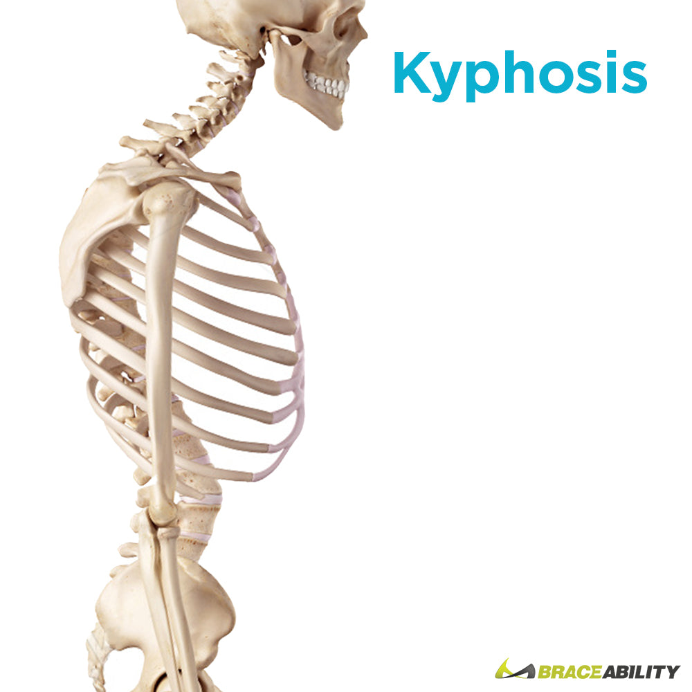 Kyphosis or hunchback from rounded shoulders can be treated with a TLSO back brace