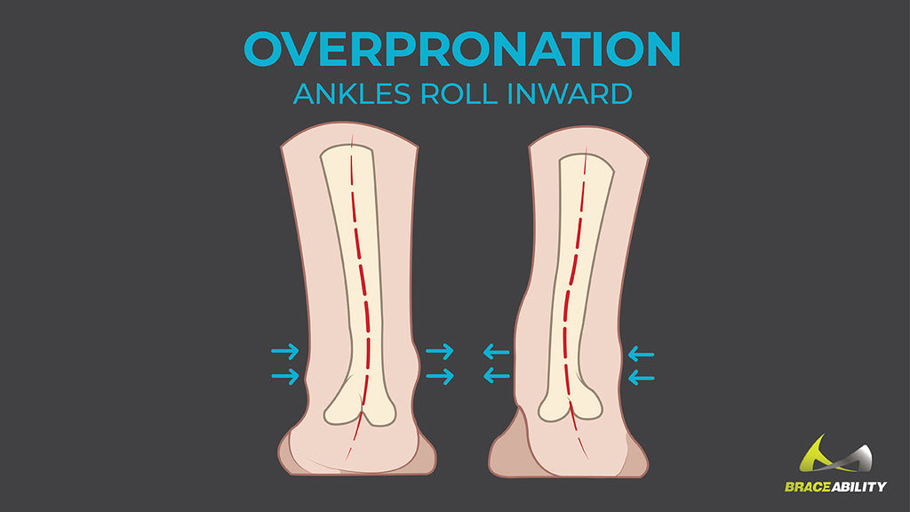 learn about overpronation or the inward rolling of the ankle while running